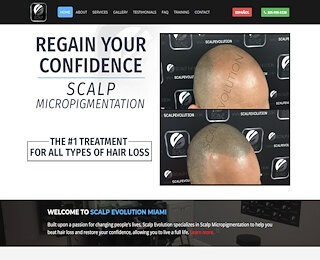 Scalp Micropigmentation Miami