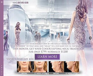 Coolsculpting Schaumburg IL